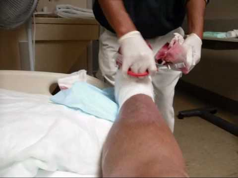 Dr. Robert Testa removing gauze for the 1st time since amputation of 4th toe--06-16-2010..wmv