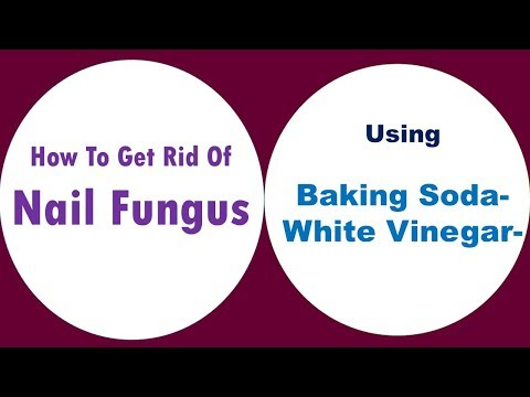 how-to-get-rid-of-nail-fungus-with-baking-soda-with-white-vinegar