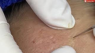 Acne treatment acne removal acne blackheads выдавливание черных точек прыщи blackheads removal 39