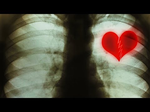 You CAN Actually Die From a Broken Heart! Here's How