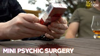 Perform Psychic Surgery on a Box | Scam Nation