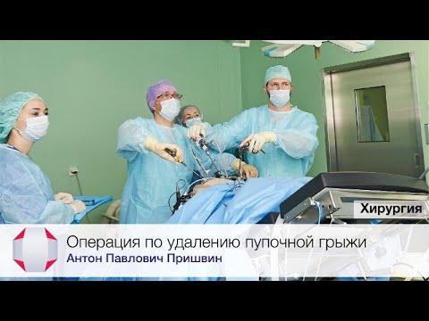 Операция по удалению пупочной грыжи. Врач-хирург, Пришвин А.П.
