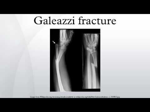 Galeazzi fracture - YouTube