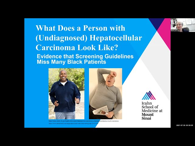What Does a Person with (Undiagnosed) Hepatocellular Carcinoma Look Like?