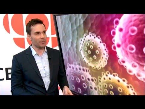 CBC Zika Virus Travel Advice