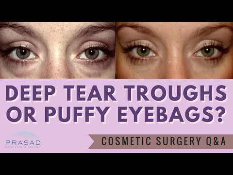 Puffy Eye Bags are Often Mistaken for Deep Tear Troughs - Treatment Differs on Severity