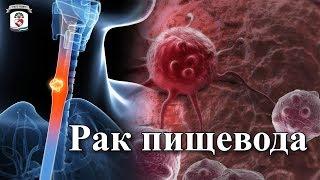 """""""На приеме у врача"""" Выпуск 46 - Рак пищевода"""