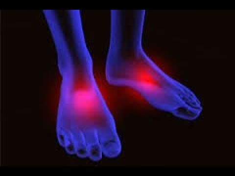Peripheral Neuropathy Natural Treatments: FDA approved At home program
