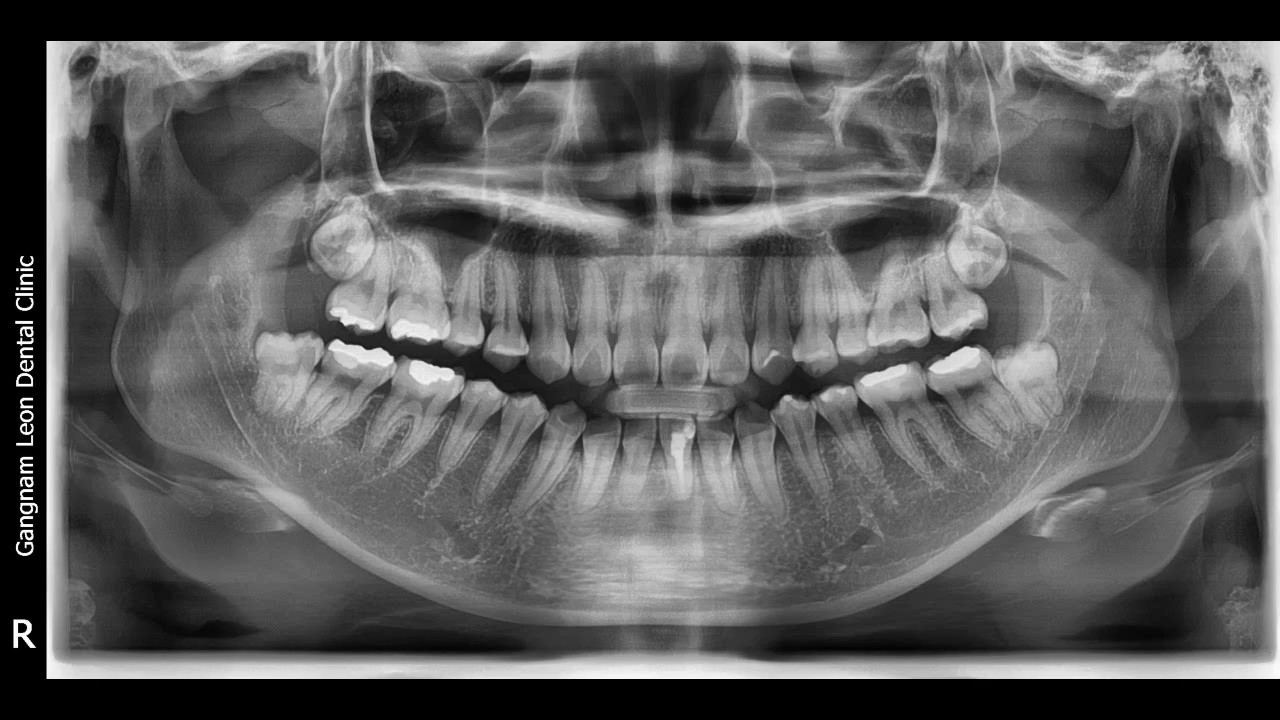 Having Impacted Wisdom Teeth: What You Need To Know