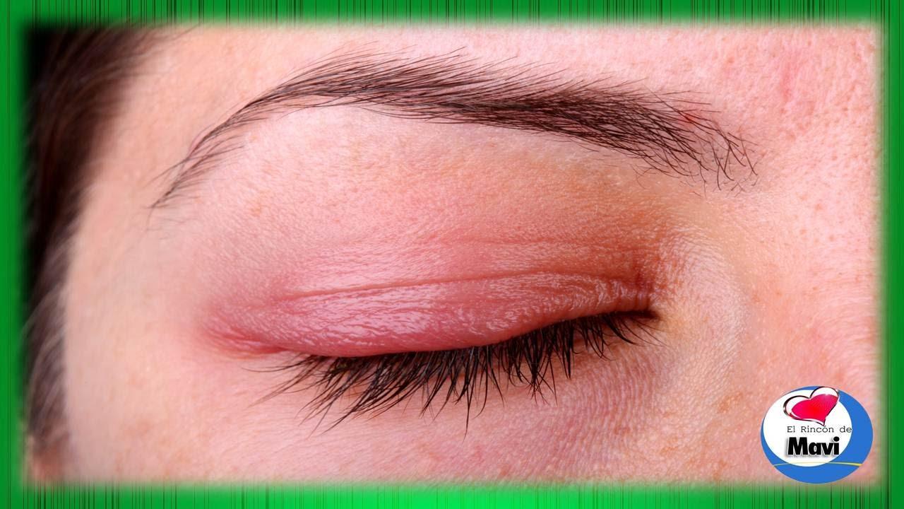 alergia en parpados superiores