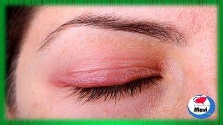 Los mejor la de alrededor remedio seca piel ojos para