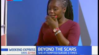 Beyond the scars: Jacinta was sold by her mother for sh5,000