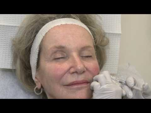 LASER And MOHS: Restylane Lyft For Cheek Augmentation