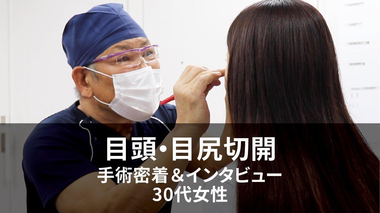 【目頭・目尻切開手術】手術密着&インタビュー(30代女性 Sally様)@表参道スキンクリニック