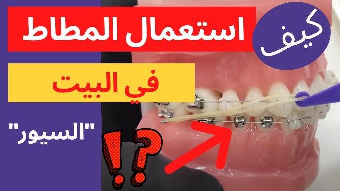 طريقة استخدام المطاط المنزلي في تقويم الأسنان Youtube
