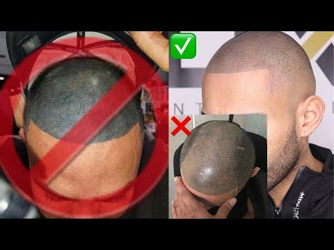 SCALP MICROPIGMENTATION (SMP) -  LOOK NATURAL?  COST?  DOES IT FADE?