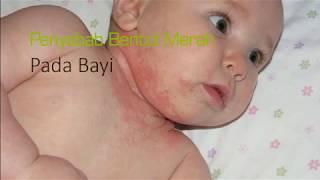 Penyebab Bentol Merah Pada Kulit Bayi Hingga Alergi yang Harus Diketahui
