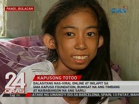 24 Oras: Dalagitang nag-viral online at inilapit sa GMA Kapuso Foundation, bumigat na ang timbang