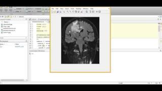 Brain Tumor Segmentation using K-means Algorithm.