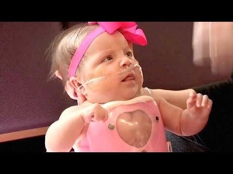 حالة نادرة جدا: مولودة بقلب نما خارج جسدها  - نشر قبل 6 ساعة