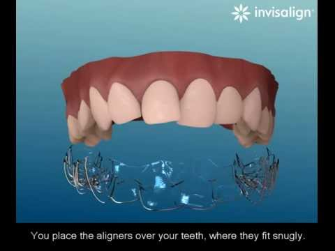 what-is-invisalign?