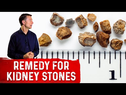 Great Remedy For Preventing Kidney Stones