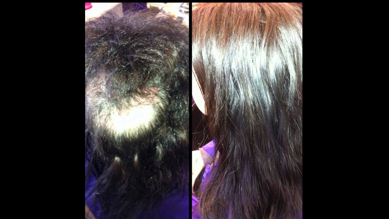 Trichotillomania Hair Extensions Successes Youtube