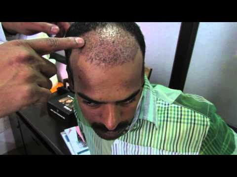 Hair Transplant Clinic in Bangalore, India - Dr. Pentyala Hair Transplant Surgeon