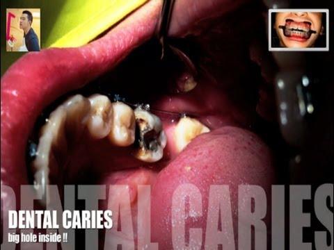 ฟันผุ ระหว่างจัดฟัน ดัดฟัน