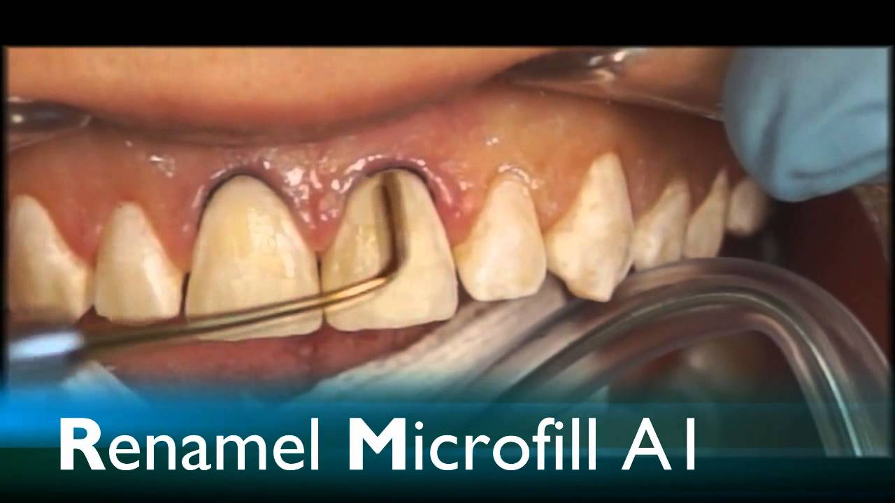 Direct resin veneering with diastema closure