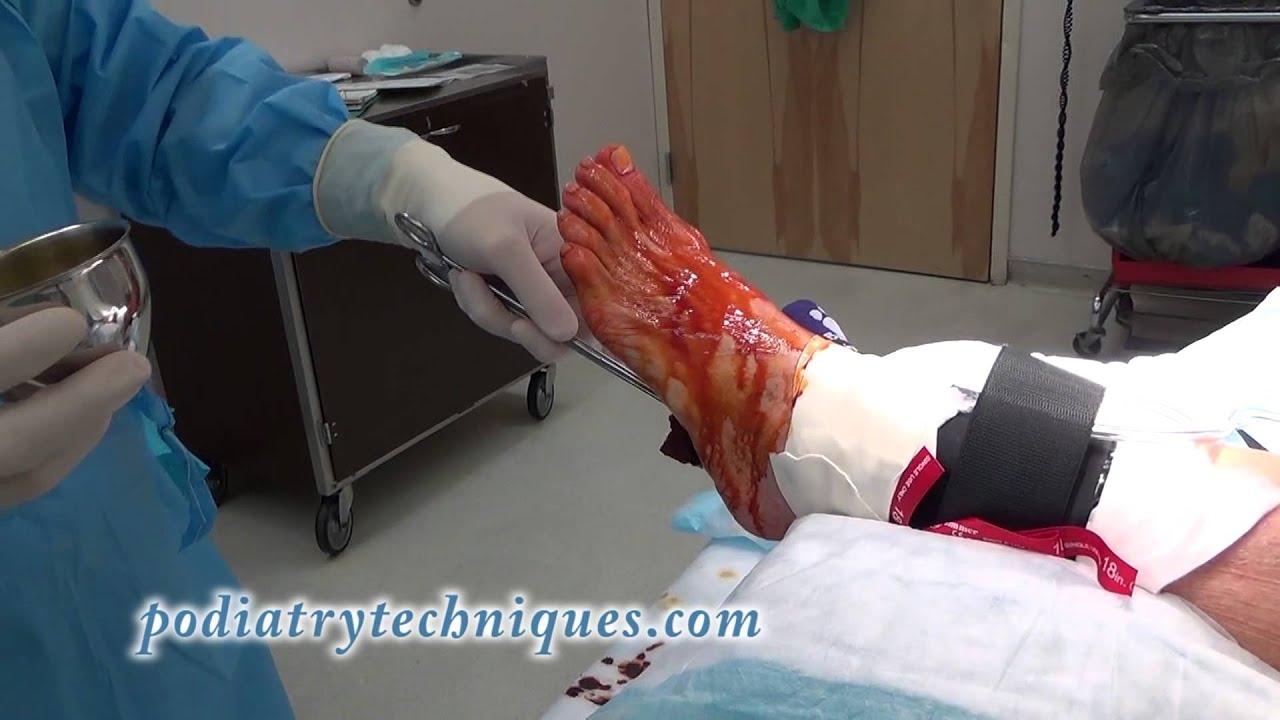 Unicompartmental, Bicompartmental, and Bi-unicompartmental Knee Arthroplasties