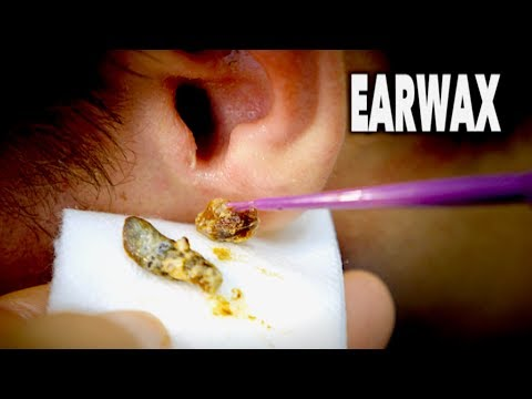 Thumbnail: THE BEST EARWAX REMOVAL EVER! (and most gross) | Dr. Paul