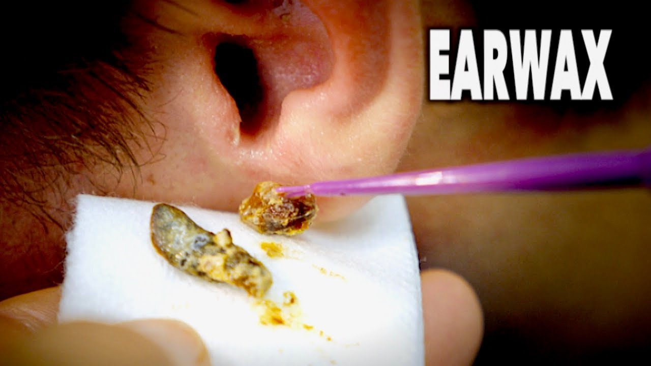 How to use at home earwax removal kit