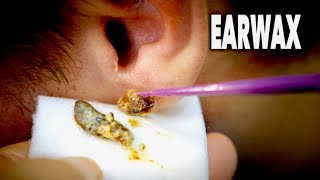 THE BEST EARWAX REMOVAL EVER!  (and most gross)  | Dr. Paul