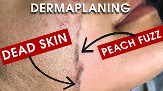 WATCH: FULL DERMAPLANING TREATMENT