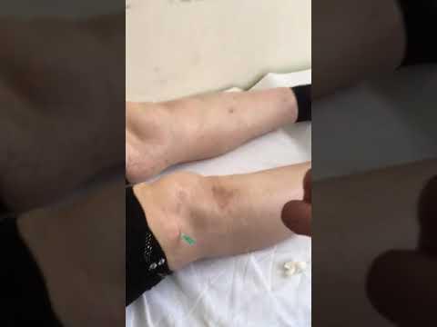 ЛРЦ им. Аскерханова. Пункция коленного сустава. Выведение жидкости из коленного сустава.