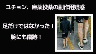 ユチョンの足の傷跡の写真が連日話題となっている。 박유천의 다리 사진...