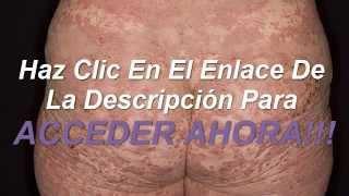 COMO CURAR LA PSORIASIS EN CASA SIN MEDICAMENTOS CAROS!!!