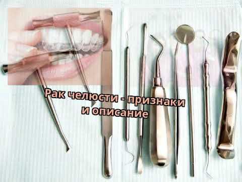 Зубы нижней челюсти болят