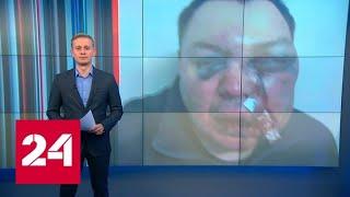 Синяки, гематомы, смещение носа: методы политической борьбы в Иркутской области - Россия 24