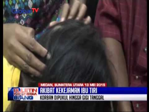 Ibu Tiri Aniaya Kepala Dan Wajah Anak 8 Tahun - BIS 13/05