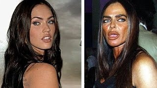 17 Worst Celebrity Plastic Surgeries