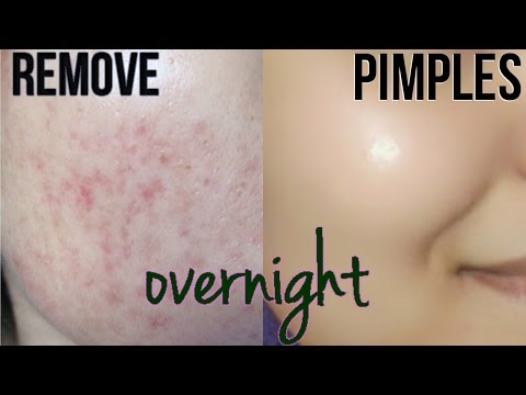 How To Remove Pimples Overnight | Acne Scar Treatment