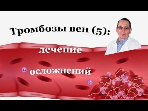 Тромбоз вен (5). Осложнения тромбоза вен. Профилактика и лечение  посттромботической болезни