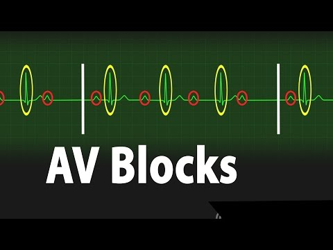 Atrioventricular Block (AV block) - Types of Heart Block Part 2, Animation.