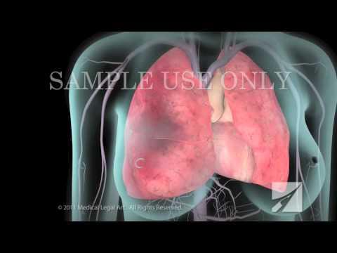 Deep Vein Thrombosis (DVT) and Pulmonary Embolism (PE)