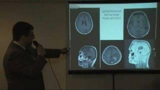 Лечение церебральных метастазов рака легкого(Нейрохирургический этап в комплексном лечении церебральных метастазов различных форм рака легкого В.А.Але..., 2012-02-15T11:33:11.000Z)