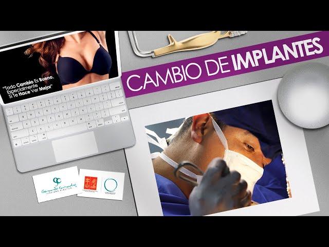 Cambio de Implantes o Prótesis Mamarias Rotas  Bogotá - Colombia