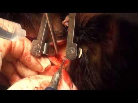 Cirugía Completa  de Frontoplastia Medellín Colombia