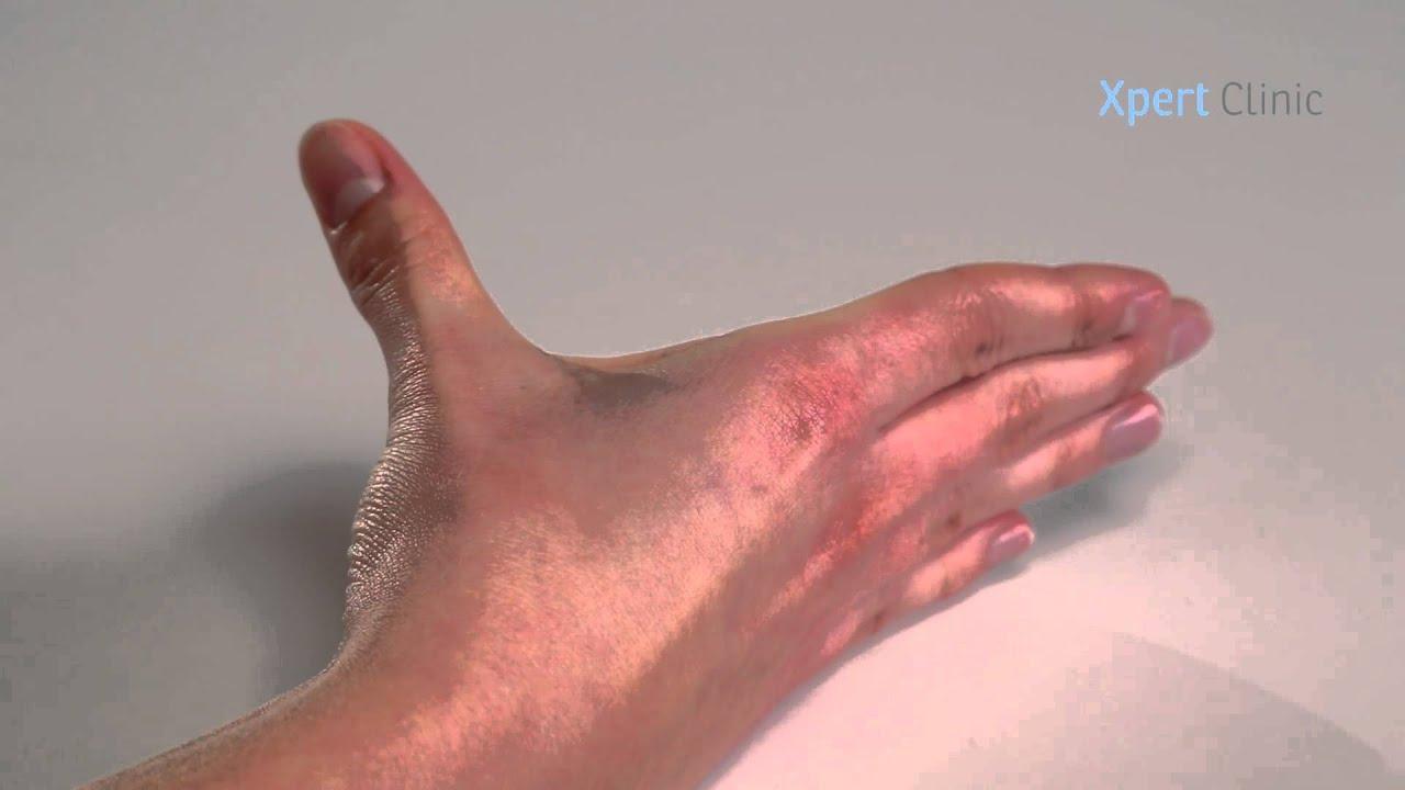 artrose duim oefeningen